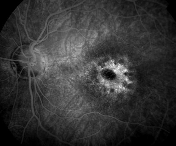 Macular Dystrophy